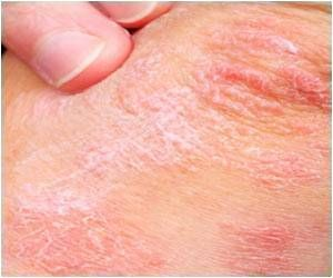 Hypertensive Patients With Psoriasis More Likely to Require Cardiovascular Procedures