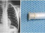 Hear the sound a whistle makes when lodged in a four-year-old boy's lungs