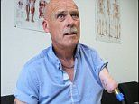 Man, 57, becomes first person in Britain to be fitted with detachable bionic upper limb