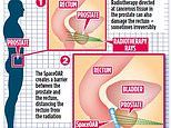 Simple gel injection can spare agony for men undergoing radiotherapy for prostate cancer