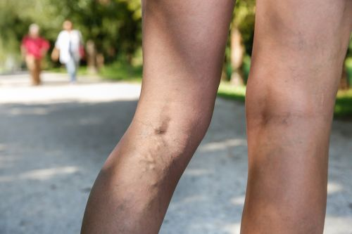 Does Sclerotherapy Impede Blood Flow?