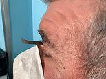Man left with inch-long nail sticking out of his eyebrow