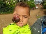 Boy's parents tried to cure eye tumour using black magic