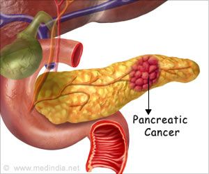 New Culprit in Pancreatic Cancer Progression Identified