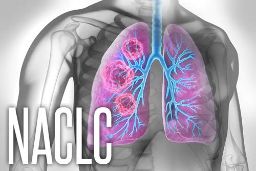 Radiomics Could Help ID Lung Cancer Prognosis After Screening