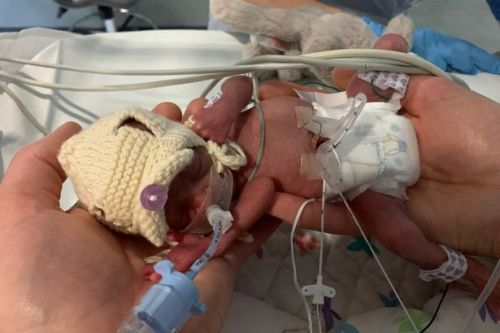 'Our baby was born at 24 weeks weighing just 1lb 10oz'