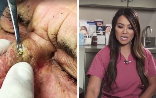 We Talked to Dr. Pimple-Popper About Why Zit-Popping Videos Are So Damn Popular