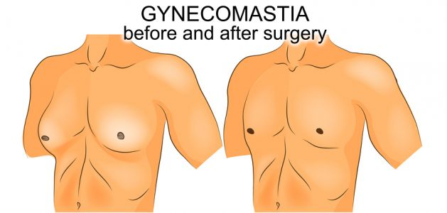 What is Gynecomastia and How Do You Treat It?