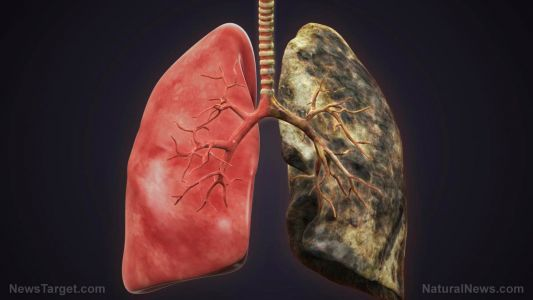 Similarities and differences between emphysema and chronic bronchitis, two conditions that fall under COPD