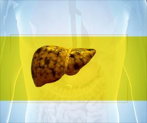 Link Between Vitamin D Status and Non-alcoholic Fatty Liver Disease in UK Children