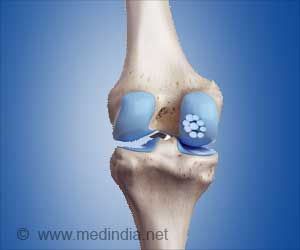 Bone Drug Could Benefit Patients With Knee Osteoarthritis