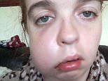Woman blighted by a facial tumour has left her a recluse
