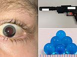 Two boys narrowly avoid being blinded by 'gel blaster' toy guns which scratched their corneas