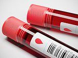 Scientists develop a blood test which can predict whether you will die in the next 10 years