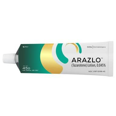 ARAZLO Lotion, 0.045% for Acne Now Available in the U.S