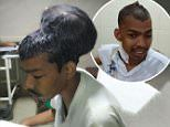 Indian surgeons remove world's largest brain tumour