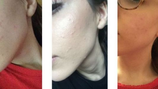 The Simple Skin-Care Routine That Helped Me Get Rid Of My Hormonal Acne