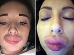 Government will launch campaign against botched Botox and fillers