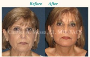 How to Get the Best Results With a Facelift
