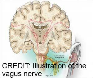 Nerve Stimulation Boosts Language Learning Skills