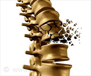 Two Easy Ways To Stay Away From Osteoporosis