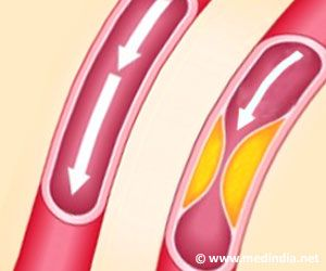 New Device for Real-time Detection of Cholesterol Developed