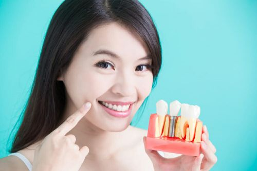 Important Things To Know About Dental Implants