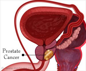 Darolutamide Benefits Patients With Prostate Cancer, Says Study