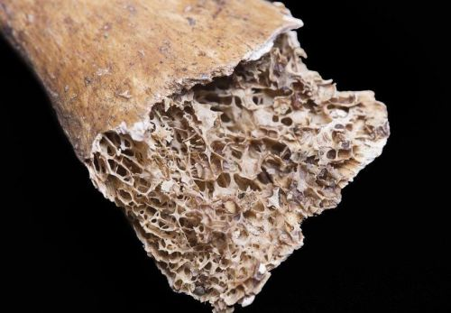 Disease prevention and bone health: 5 Things people with diabetes need to know about osteoporosis