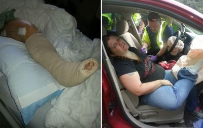Woman Suffers Gruesome Accident Because of This Common Car Habit