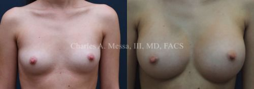 How to Get Your Ideal Breast Augmentation Results