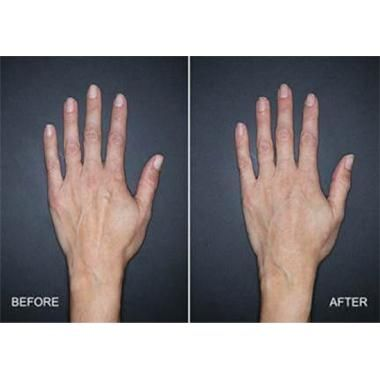Restylane Lyft Approved for Hands
