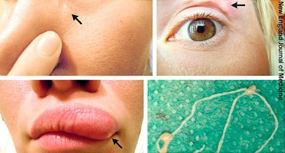Doctors Discover Parasitic Worm in Woman's Face