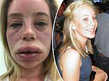 Paramedic is left with lips TWICE their normal size, covered in hives and struggling to breathe