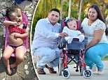 Toddler whose parents were advised to terminate the pregnancy is approaching her third birthday