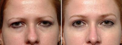 Why the Endoscopic Brow Lift Has Replaced the Coronal Brow Lift