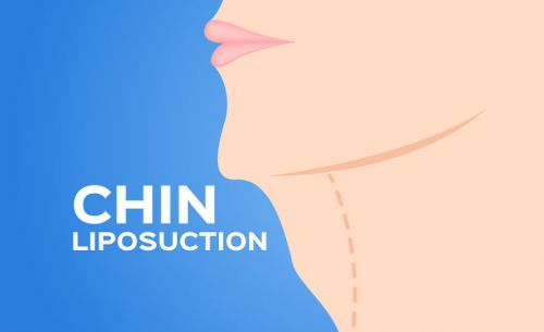Plastic Surgery Success Story: Chin Liposuction