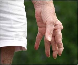 Nerve Stimulation Reduces Symptoms of Rheumatoid Arthritis