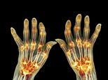 Can anything ease my arthritic hands after years of pain? Dr Martin Scurr answers your questions