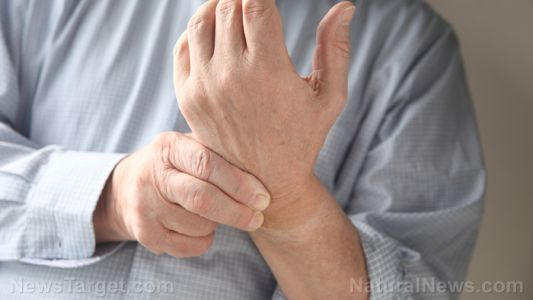 Investigating the efficacy of acupuncture for treating rheumatoid arthritis of the hand