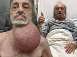 New Jersey man, 81, has a cancerous tumor the size of a soccer ball removed from his neck