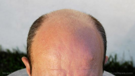 Understanding baldness: Causes, types and potential home remedies