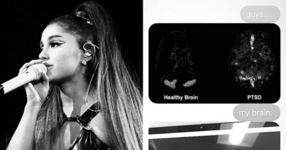 Ariana Grande Shares Jarring Scan Of What PTSD Did To Her Brain