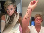 'I beat breast cancer - but side effects nearly killed me'