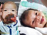 Baby girl's cancerous tumour engulfs her mouth