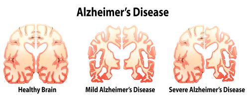 Plotting the Demise of Alzheimer's: New Study is Major Test for Power of Early Action