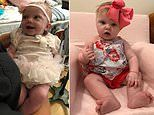 Baby girl, 9 months, hailed a 'miracle' for surviving rare tumor that was taking up 60% of brain