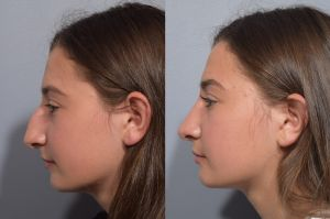 Should a Teenager Get a Nose Job?