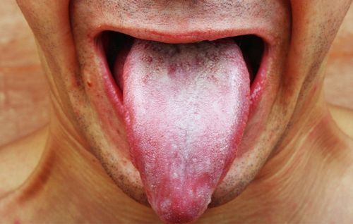 What Is That Nasty, White Film On Your Tongue?