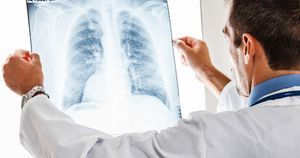 FDA approves Rybrevant for NSCLC with EGFR exon 20 insertion mutations